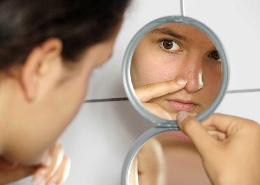Средство против черных точек на носу