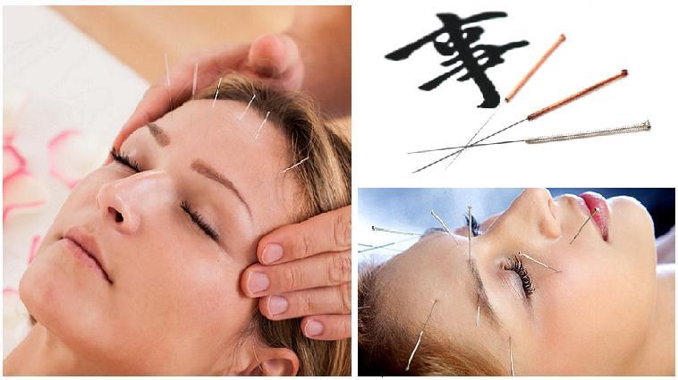 Иглоукалывание - омоложение лица без операции и побочных эффектов