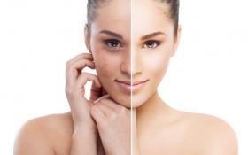 Отбеливающие крема для лица - кожа без изъянов