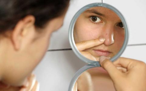 Как бороться с черными точками на лице?